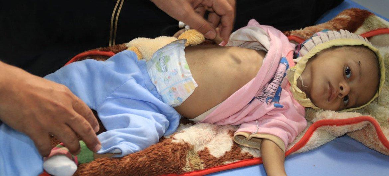Este bebé es atendido por desnutrición aguda severa en el Hospital Al-Thawra de Hodeidah (Yemen).
