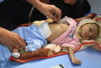 طفل يمني يعاني من سوء التغذية الحاد الشديد يتلقى الرعاية الصحية في مستشفى الثورة في الحديدة باليمن.
