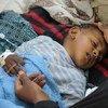 Un niño enfermo de cólera recibe tratamiento en un hospital de Sana´a, Yemen. Foto: © UNICEF/UN065873/Alzekri