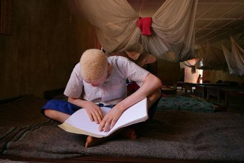 A child, who is blind and has albinism reads Braille at a primary school for children with disabilities in the town of Moshi, Kilimanjaro Region.