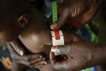 Un bébé a la circonférence du milieu de son bras supérieur gauche mesuré pour des signes de malnutrition. La zone rouge (12 cm) est une malnutrition sévère, la zone jaune (13 cm) est une malnutrition modérée et la zone verte (14 cm) est un on signe.