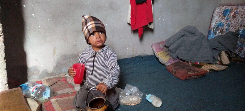 طفل يبلغ من العمر عامين مصاب بسوء التغذية، يعيش مع والدته وشقيقته في أحد مخيمات النازحين في إب، باليمن - الصورة: OCHA Yemen