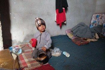 Двухлетний житель Йемена Бадель истощен от недоедания. Фото ООН