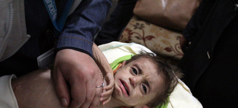 Dans la Ghouta orientale, en Syrie, un enfant est examiné par un professionnel de santé pour détecter des signes de malnutrition.