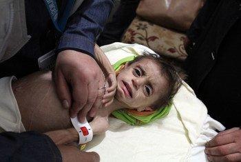 En Guta Oriental, en Siria, un médico mide el contorno del brazo a un niño para determinar si sufre malnutrición aguda.
