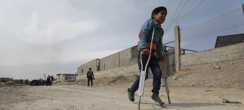 Un niño con muletas en Beit Sawa, Guta Oriental, camina hacia Hamourieh donde se ha abierto una vía de evacuación.