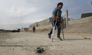 Этот юный житель Вейт-Савы стремится попасть на пропускной пункт - на костылях