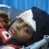 Una niña de 9 años recibe tratamiento en el hospital de Althawra en Hodeida, Yemen. Resultó herida cuando huía de los bombardeos.