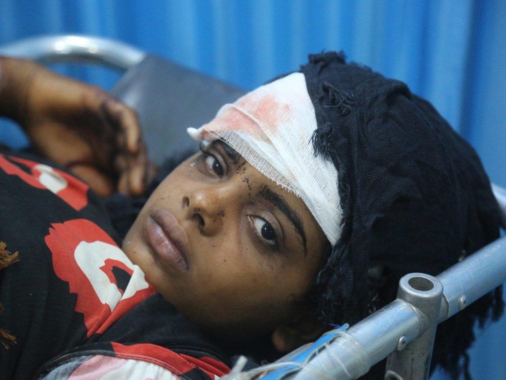 2018年6月9日,在也门荷台达的一所医院,一名受伤的女孩正在接受治疗。她和弟弟、叔叔一起受伤,当时一家人正试图搬到远离战斗的地区。
