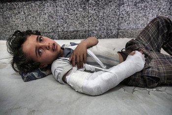 أرشيف: طفل يمني بانتظار العلاج في غرفة الطوارئ بمستشفى الجمهوري في صنعاء، اليمن. 3 مايو/أيار 2017.