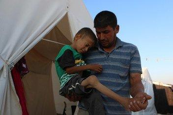 الطفل يامن، 11 سنة، نزح مع عائلته من ريف حمص الشمالي في 29 آب / أغسطس 2018، ويعيشون الآن في مخيم في ريف إدلب الشمالي. يعاني يامن من بطء في النمو ويتطلب رعاية طبية متخصصة يستحيل الحصول عليها بسبب تكرار نزوحه.