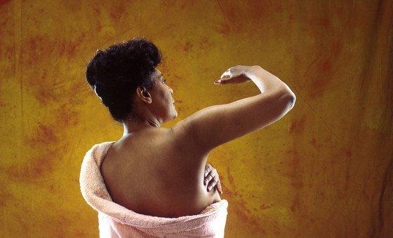 医生建议通过对乳房进行自我检查来筛查癌症。