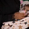 عبد الرحمن، البالغ من العمر 6 أشهر، يعاني من سوء تغذية حاد. يزن عبد الرحمن 2.8 كيلو غرام. يتلقى عبد الرحمن العلاج في مستشفى الصدقة في عدن، اليمن. 15 أغسطس/آب 2018.