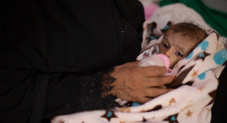 Adbulrahamman Yaser tiene 6 meses y sufre malnutrición aguda. Pesa 2,8 kg y se encuentra en el hospital Al-Sadaqah, en Aden, Yemen.