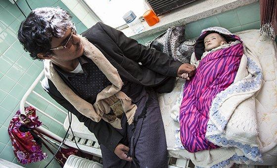 Ali Yakya Ali, un niño de cinco años de edad que sufre desnutrición aguda grave, junto a su padre en el hospital materno-infantil Al Sabeen de Sana'a, en Yemen. El PMA proporciona suplementos nutricionales para tratarlo.