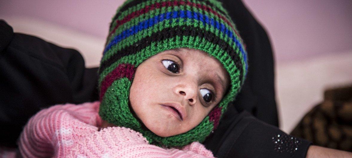 A fome está agravar-se no país com 20 milhões de iemenitas, dois terços da população enfrenta insegurança alimentar.