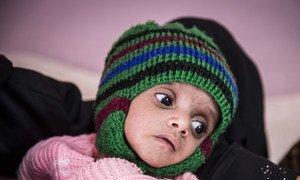 Un enfant souffrant de malnutrition est soigné à l'hôpital Al Sabeen, à Sana'a, au Yémen.