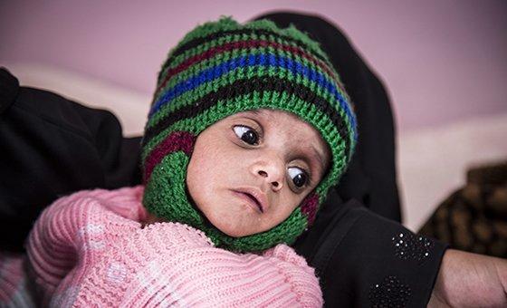Iêmen: dois terços da população enfrenta insegurança alimentar.