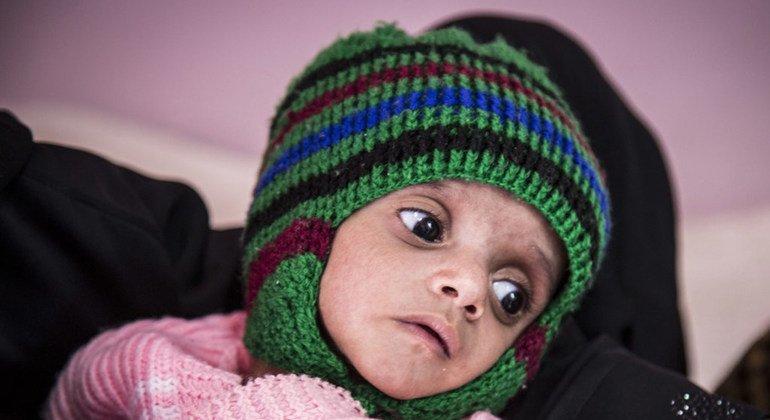 Un niño con malnutrición aguda recibe tratamiento en el hospital Al Sabeen en Saná, Yemen.