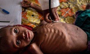 Na República Centro-Africana, milhões de crianças estão fora da escola, desnutridas e vulneráveis a doenças, ao abuso e à exploração.