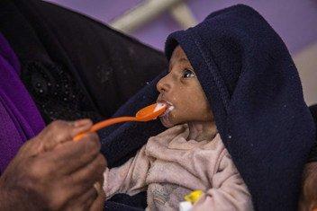 الصراع المستمر في اليمن يدفع الملايين من الناس إلى حافة المجاعة. (من الأرشيف).