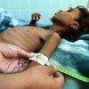طبيب يقوم بقياس ذراع الطفل اليمني علي محمد أحمد جمال (12 عاما) يعاني من سوء التغذية في أحد مراكز العلاج في مستشفى بصنعاء. (نوفمبر 2018)