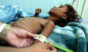 A Yemeni chikd suffering from malnutrition at a treatment centre in a hospital in Sana'a. (file)