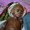 Fawaz sufre de malnutrición severa y se encuentra en un hospital de Aden, Yemen.