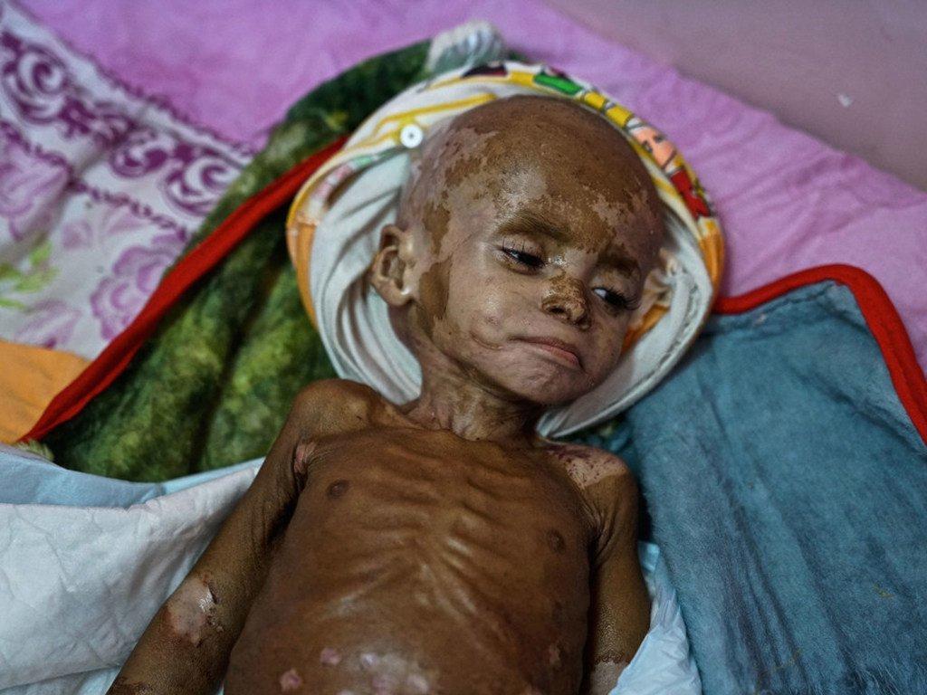 Fawaz, qui souffre de malnutrition aiguë sévère, à l'hôpital d'Aden. Novembre 2018.