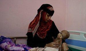 Fawaz, que sufre desnutrición aguda, y su madre en el hospital de Adén, en Yemen, en noviembre de 2018.