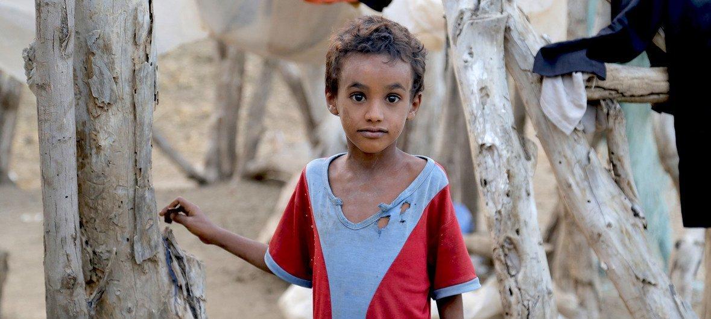 ملايين الأطفال في اليمن يتعرّضون لخطر سوء التغذية وخاصة في ظل نقص الخدمات الصحية.
