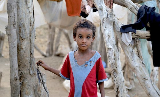 Millions of children across Yemen face serious threats due to malnutrition, in particular, and the lack of basic health services, in general. All these threats are caused by the ongoing war and hostilities in the country, especially in Hudaydah governorate.
