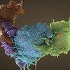 Трехмерное изображение Т-клеток, зараженных (голубые и зеленые) и незараженных (коричневые и сиреневые) вирусом ВИЧ.