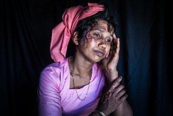30岁的诺姆塔兹·贝古姆是一名来自缅甸的难民,现在在孟加拉国,她的两个孩子在她面前被杀。(2018年3月)