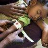 Un niño desnutrido recibe tratamiento en un centro nutricional en la ciudad de Kasala, al noreste de Sudán.