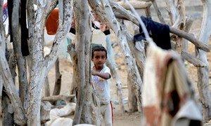 Una niña yemení vive con sus padres, tres hermanos y tres hermanas en Hodeida. Todos están expuestos a la malnutrición debido a la guerra y la falta de ingresos para comprar comida.