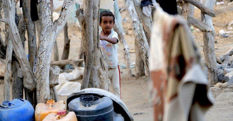 طفلة تعاني من سوء التغذية الحاد ومضاعفات الحمى والإسهال - الحديدة - اليمن.