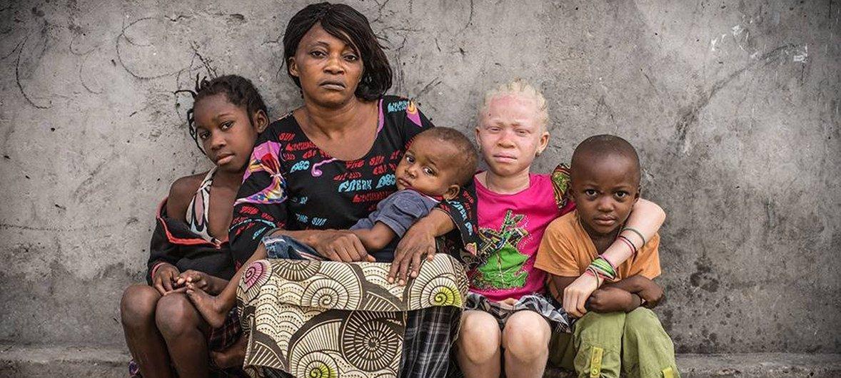 Les personnes touchées par l'albinisme sont souvent malvoyantes et ont besoin d'une protection spéciale contre le soleil. Elles développent souvent un cancer de la peau et souffrent de stigmatisation sociale, souligne l'UNICEF.