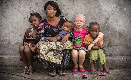 People affected by albinism are often visually impaired and need special protection against the sun. They often develop skin cancer and suffer from social stigmatization, according to UNICEF.
