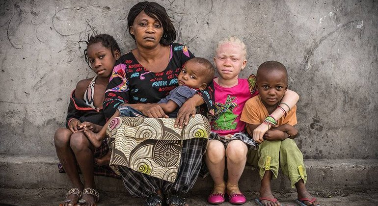 Witchcraft killings of people with albinism has risen during the COVID-19 pandemic, says UN expert
