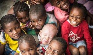 L'albinisme est une maladie héréditaire rare, non contagieuse, présente à la naissance. On la trouve chez les deux sexes, sans distinction d'origine ethnique, dans tous les pays du monde.