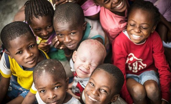 Albinism is a rare, non-contagious, genetically inherited condition present at birth. It is found in both sexes, regardless of ethnicity, in all countries of the world.