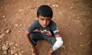 Menino ferido nos combates em assentamento de Aqrabat, perto de Idlib