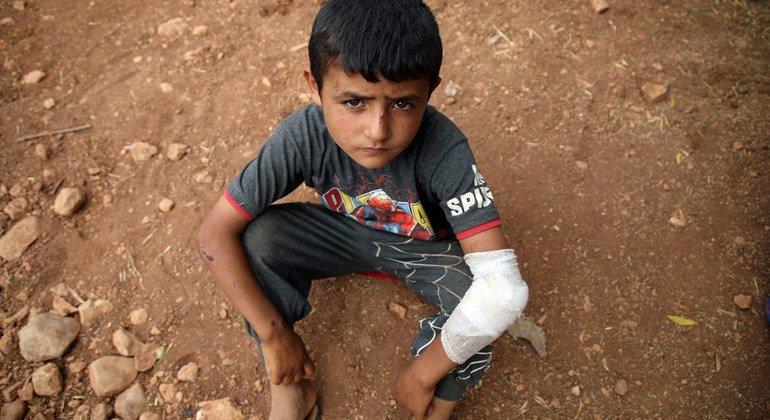 Un niño herido descansa en el suelo de un campamento improvisado en la aldea siria de Aqrabat, a 45 kilómetros al norte de la ciudad de Idlib, cerca de la frontera con Turquía. (Junio de 2019)
