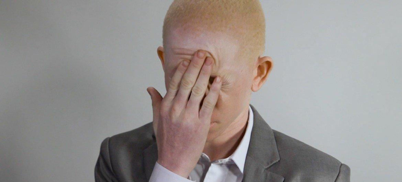 Embora não existam dados completos, a prevalência do albinismo é maior entre populações indígenas e afrodescendentes.